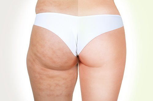 Perdre cellulite avec velo appartement